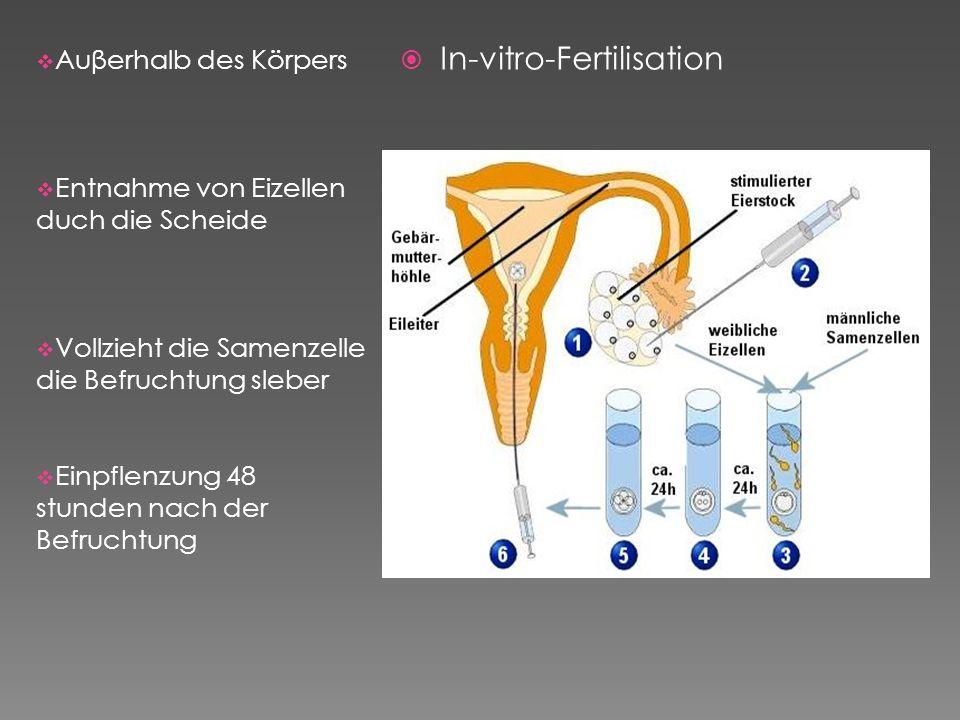 Auβerhalb des Körpers Entnahme von Eizellen duch die Scheide Vollzieht die Samenzelle die Befruchtung sleber Einpflenzung 48 stunden nach der Befrucht