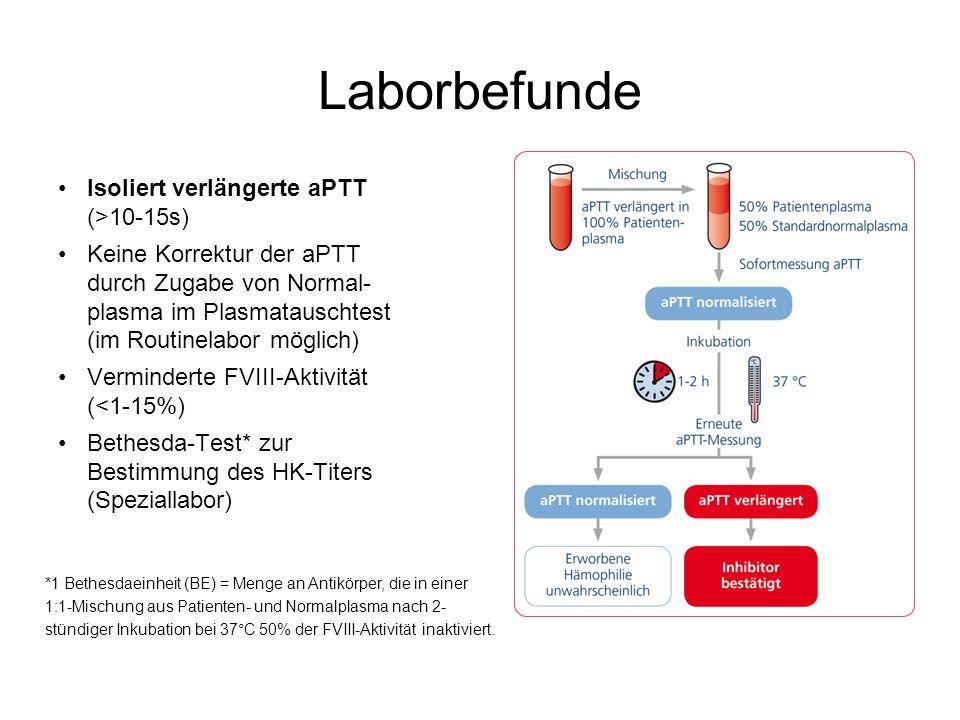 Laborbefunde Isoliert verlängerte aPTT (>10-15s) Keine Korrektur der aPTT durch Zugabe von Normal- plasma im Plasmatauschtest (im Routinelabor möglich