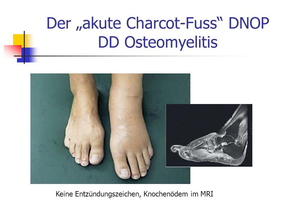 Der akute Charcot-Fuss DNOP DD Osteomyelitis Keine Entzündungszeichen, Knochenödem im MRI