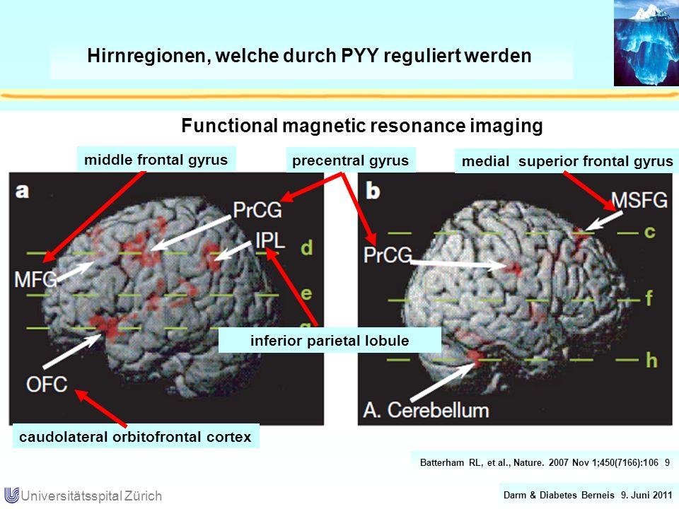Darm & Diabetes Berneis 9. Juni 2011 Universitätsspital Zürich Hirnregionen, welche durch PYY reguliert werden Batterham RL, et al., Nature. 2007 Nov