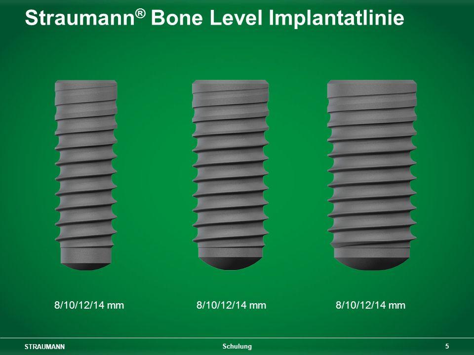 STRAUMANN 16 Schulung Sofortige Implantatplatzierung Sek.-Stabilität: Konus im Hals- bereich für glatten Kontakt oder Alveolar- Approximation Primärstabilität: Gewinde im zylindrischen apikalen Teil