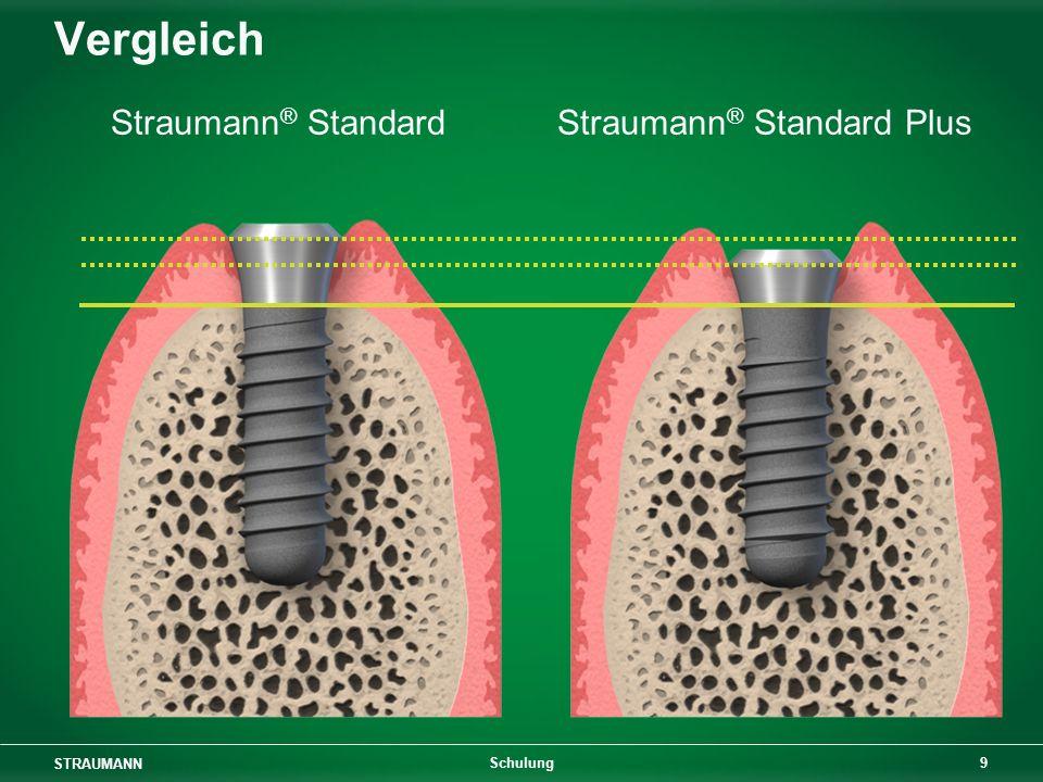 STRAUMANN 20 Schulung Oral Implantology Thieme Verlag 1994 Gewindedesign für Tissue-Level-Implantate 15° 1,25 mm F