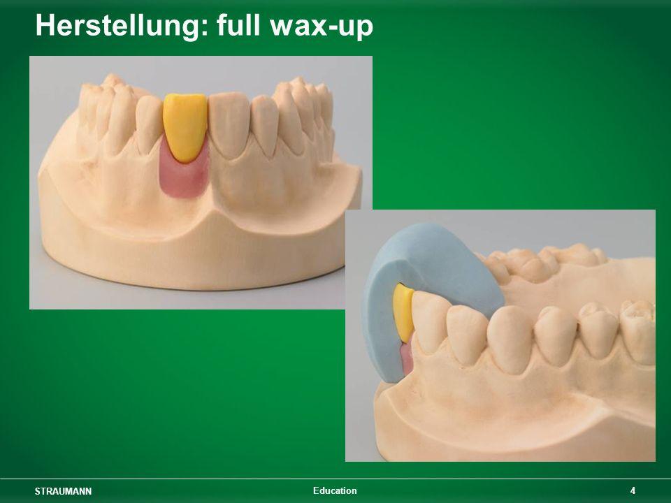 STRAUMANN 4 Education Herstellung: full wax-up