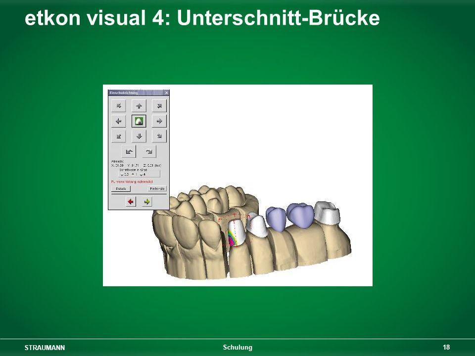 STRAUMANN 18 Schulung etkon visual 4: Unterschnitt-Brücke