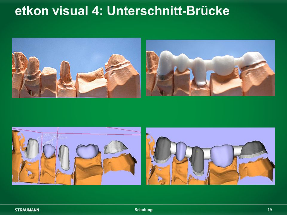 STRAUMANN 19 Schulung etkon visual 4: Unterschnitt-Brücke