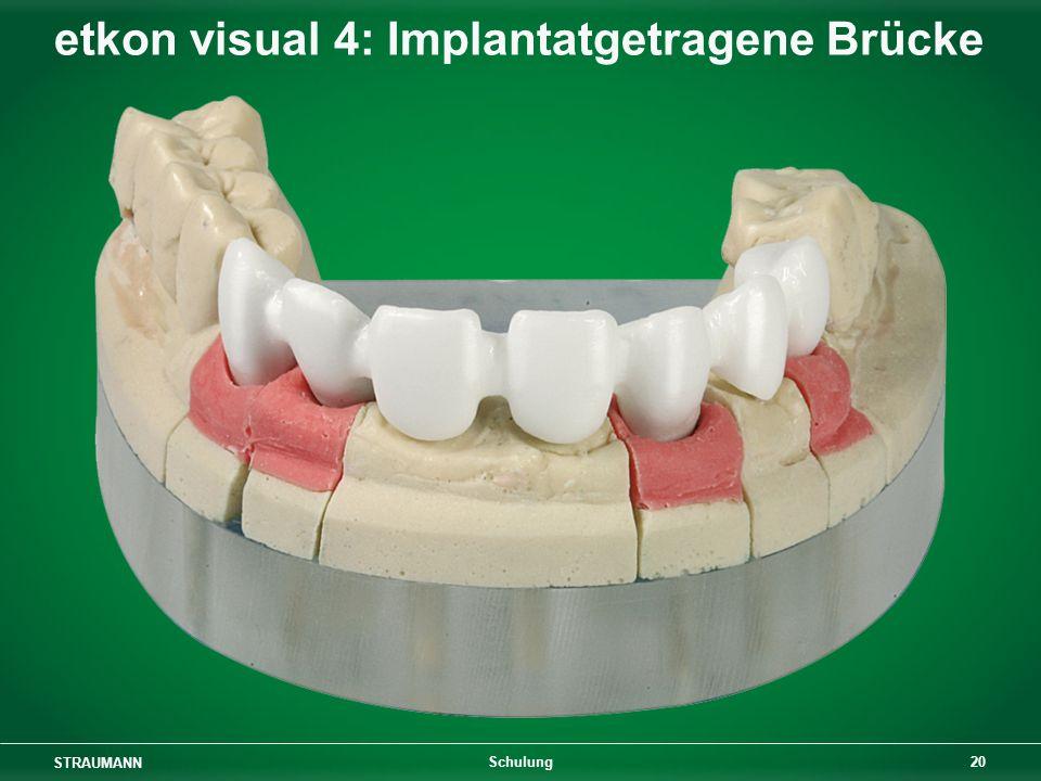 STRAUMANN 20 Schulung etkon visual 4: Implantatgetragene Brücke