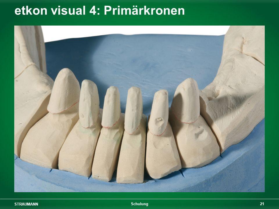 STRAUMANN 21 Schulung etkon visual 4: Primärkronen