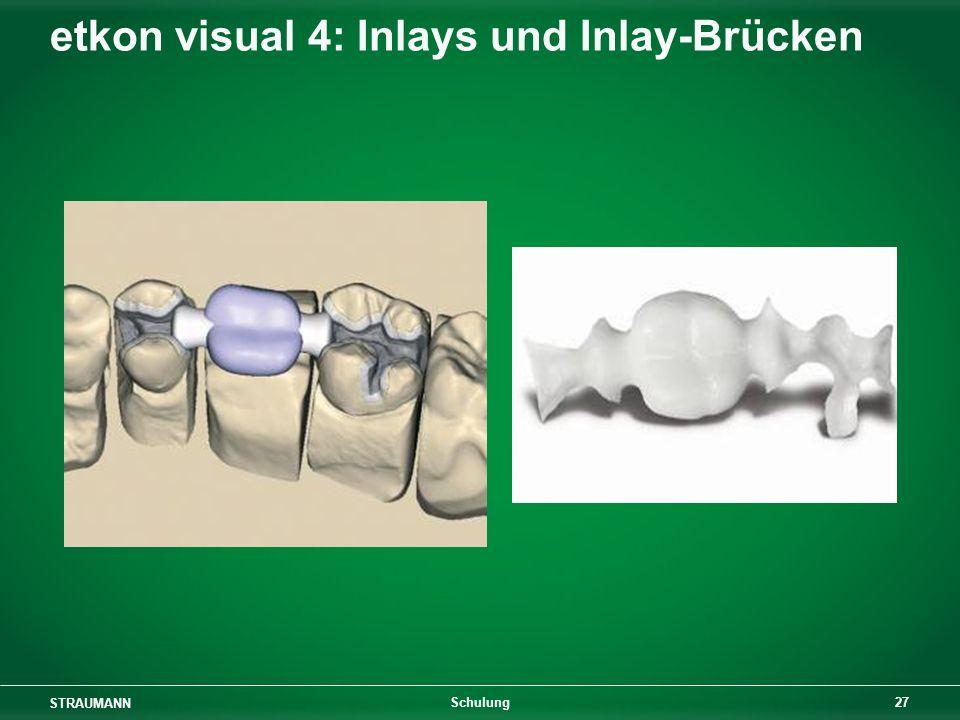 STRAUMANN 27 Schulung etkon visual 4: Inlays und Inlay-Brücken