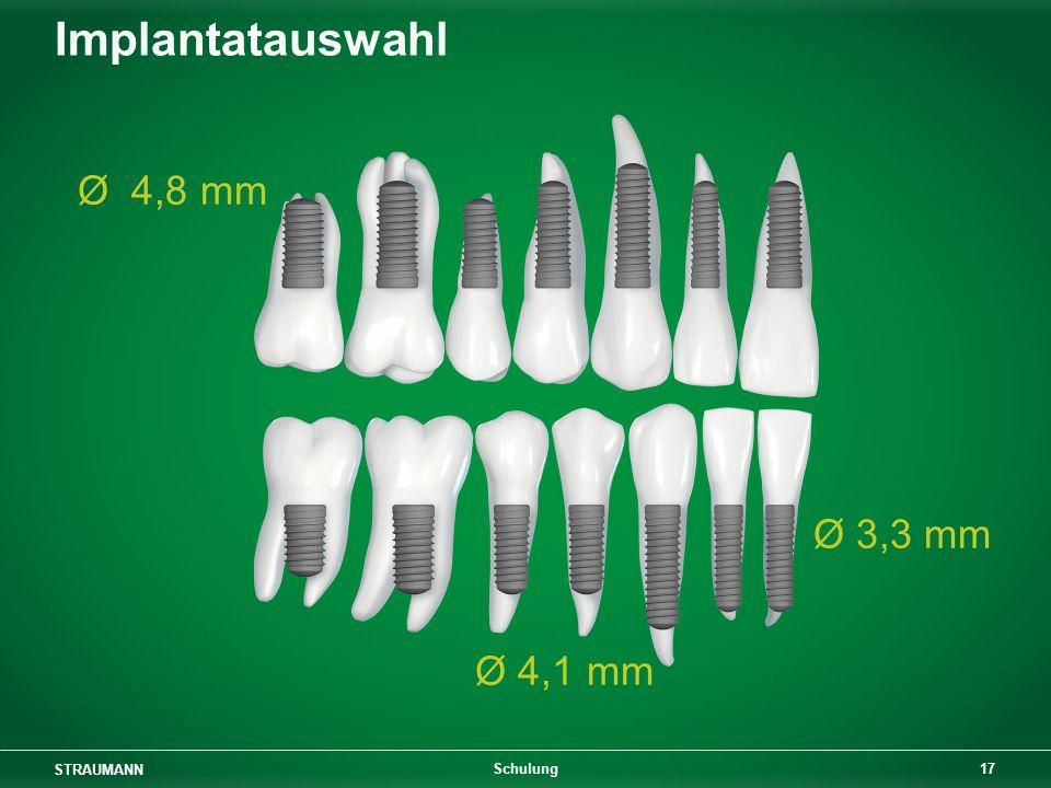 STRAUMANN 17 Schulung Implantatauswahl Ø 4,8 mm Ø 3,3 mm Ø 4,1 mm