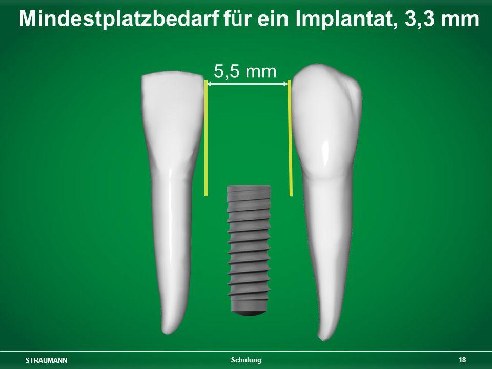 STRAUMANN 18 Schulung 5,5 mm Mindestplatzbedarf für ein Implantat, 3,3 mm