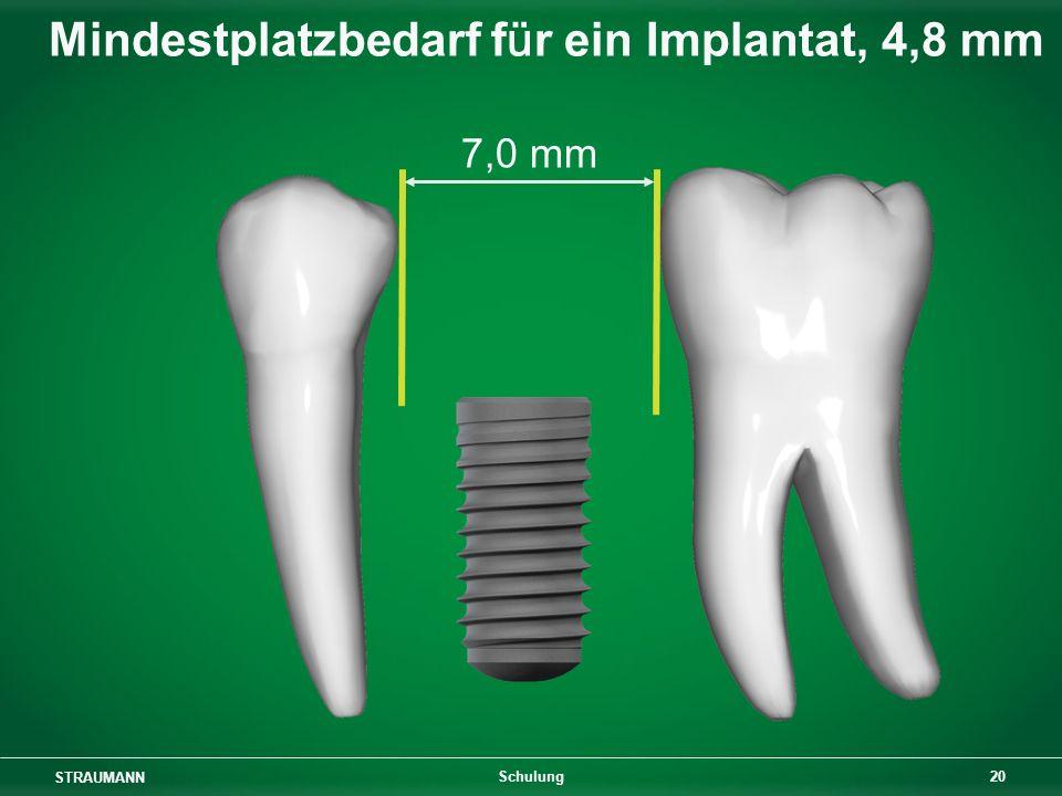 STRAUMANN 20 Schulung 7,0 mm Mindestplatzbedarf für ein Implantat, 4,8 mm