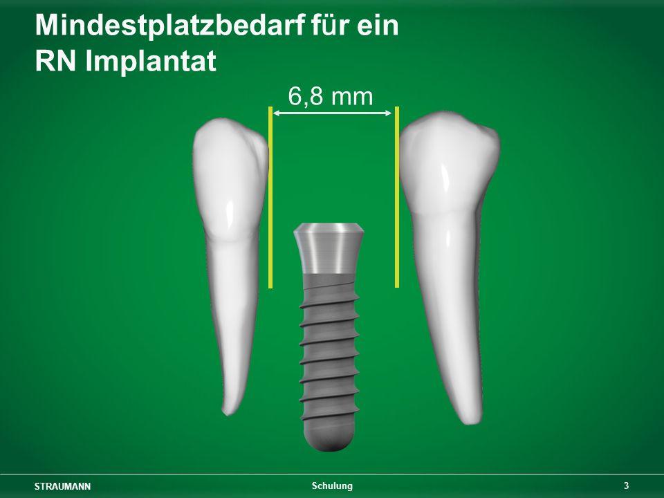 STRAUMANN 4 Schulung 8,5 mm Mindestplatzbedarf für ein WN Implantat