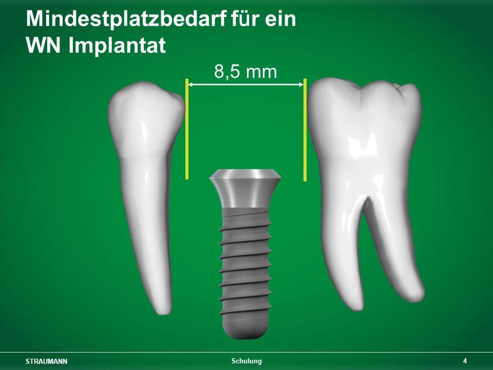 STRAUMANN 25 Schulung Zahn-Implantat- und Implantat-Implantat- Abstand 3,5 mm7,0 mm 7,5 mm