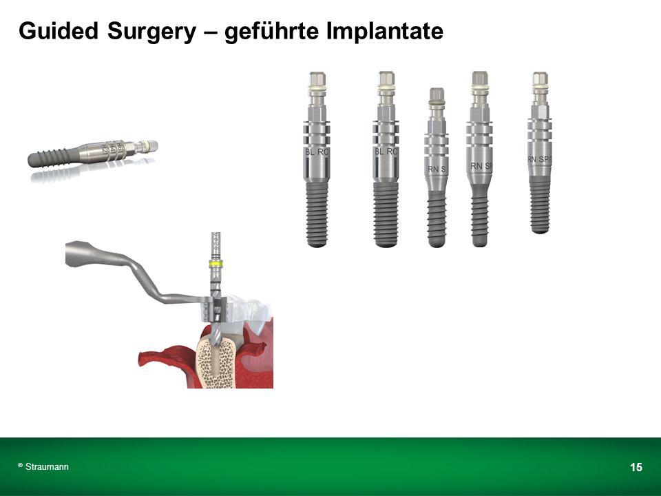 Guided Surgery – geführte Implantate Straumann 15