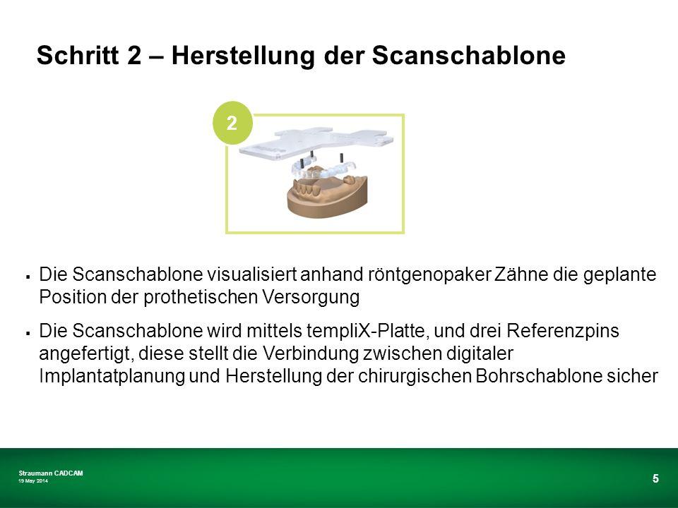 Straumann CADCAM 19 May 2014 5 Die Scanschablone visualisiert anhand röntgenopaker Zähne die geplante Position der prothetischen Versorgung Die Scansc