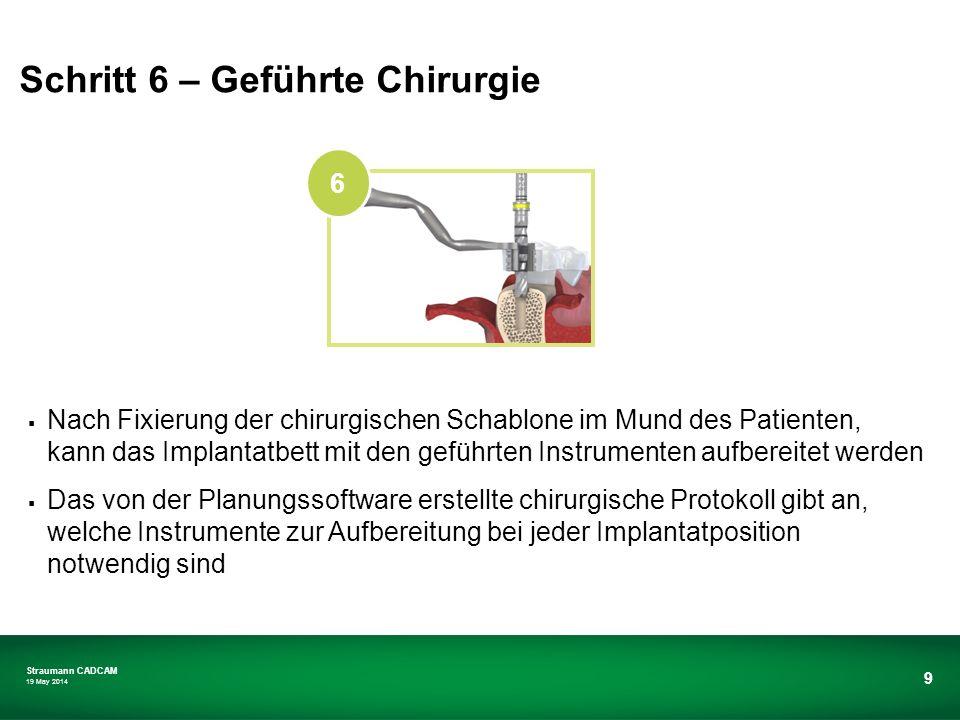 Straumann CADCAM 19 May 2014 9 Nach Fixierung der chirurgischen Schablone im Mund des Patienten, kann das Implantatbett mit den geführten Instrumenten