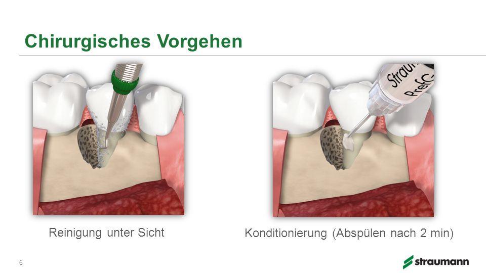 Chirurgisches Vorgehen 6 Reinigung unter Sicht Konditionierung (Abspülen nach 2 min)