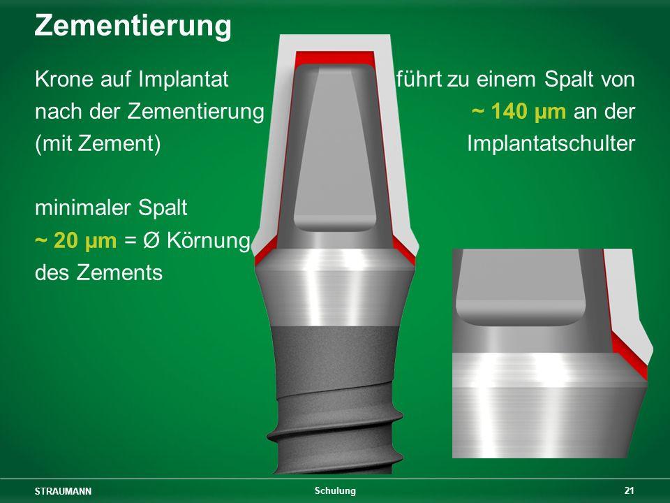 STRAUMANN 21 Schulung Zementierung Krone auf Implantat nach der Zementierung (mit Zement) minimaler Spalt ~ 20 µm = Ø Körnung des Zements führt zu einem Spalt von ~ 140 µm an der Implantatschulter