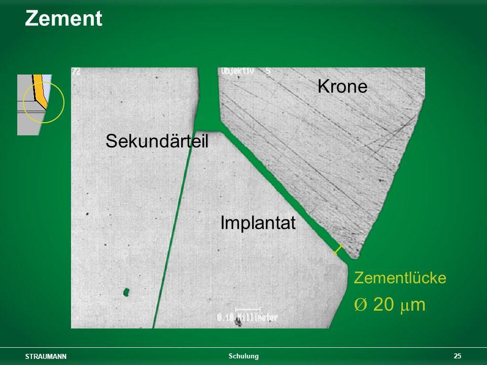 STRAUMANN 25 Schulung Zement Krone Sekundärteil Implantat Zementlücke Ø 20 µ m