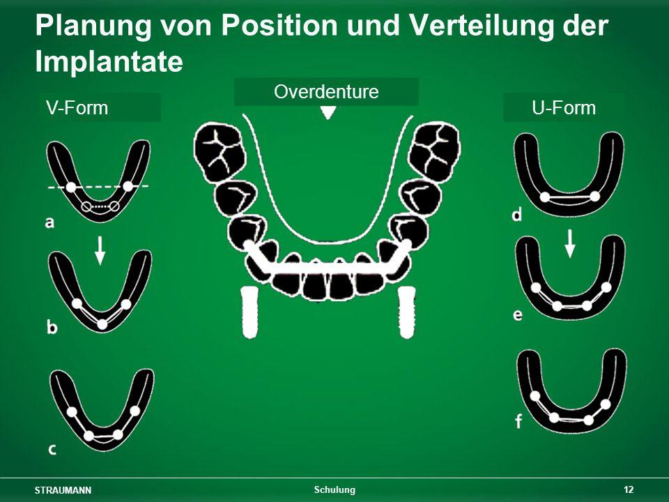 STRAUMANN 12 Schulung Planung von Position und Verteilung der Implantate V-Form Overdenture U-Form