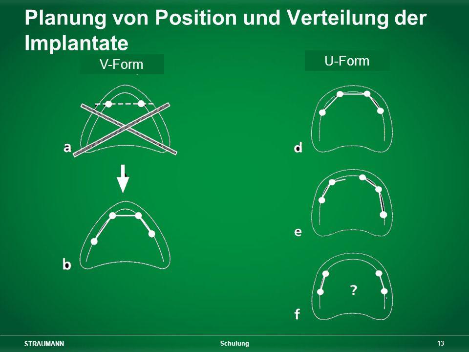 STRAUMANN 13 Schulung Planung von Position und Verteilung der Implantate V-Form U-Form