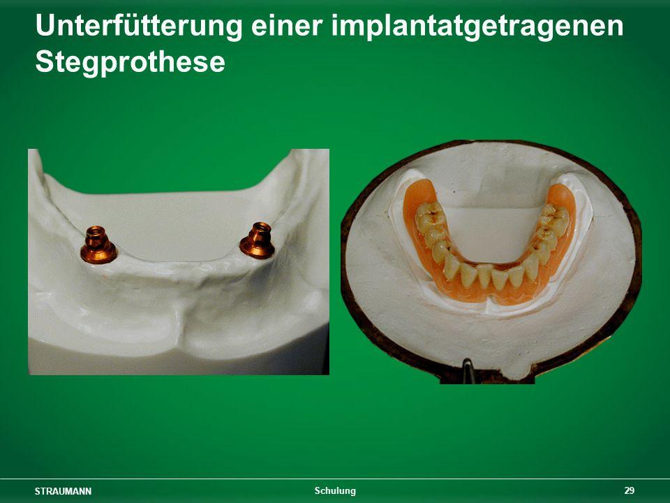 STRAUMANN 29 Schulung Unterfütterung einer implantatgetragenen Stegprothese