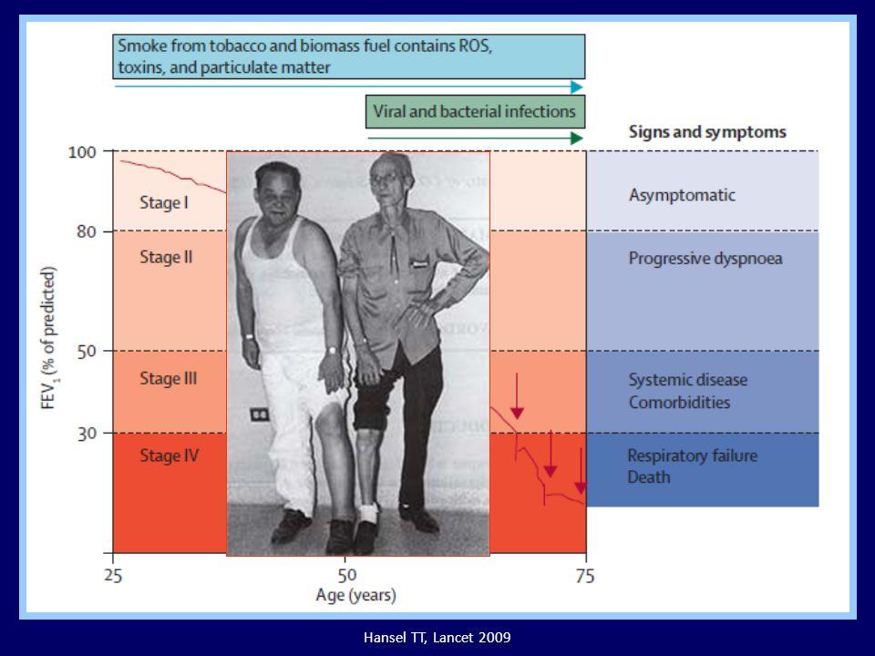 Hansel TT, Lancet 2009