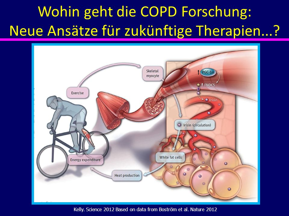 Kelly. Science 2012 Based on data from Boström et al. Nature 2012 Wohin geht die COPD Forschung: Neue Ansätze für zukünftige Therapien...?