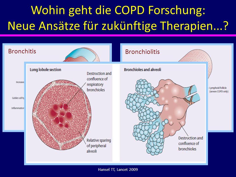 Hansel TT, Lancet 2009 Bronchitis Bronchiolitis Wohin geht die COPD Forschung: Neue Ansätze für zukünftige Therapien...?
