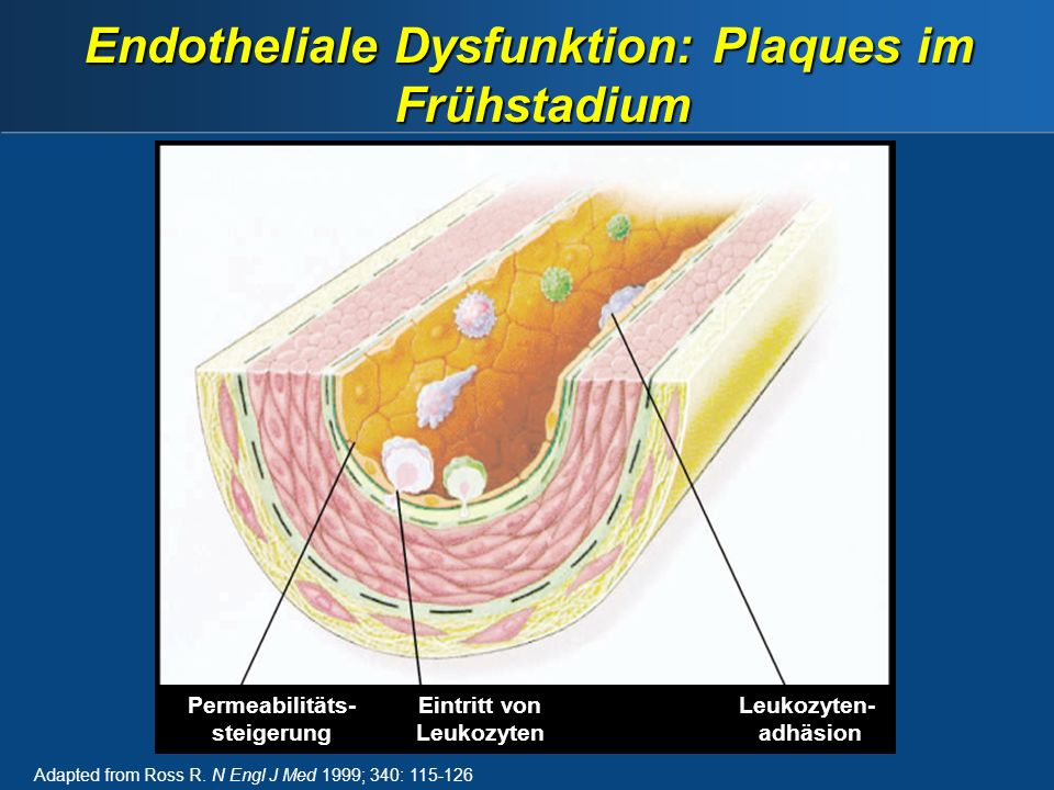 Endotheliale Dysfunktion: Plaques im Frühstadium Adapted from Ross R.