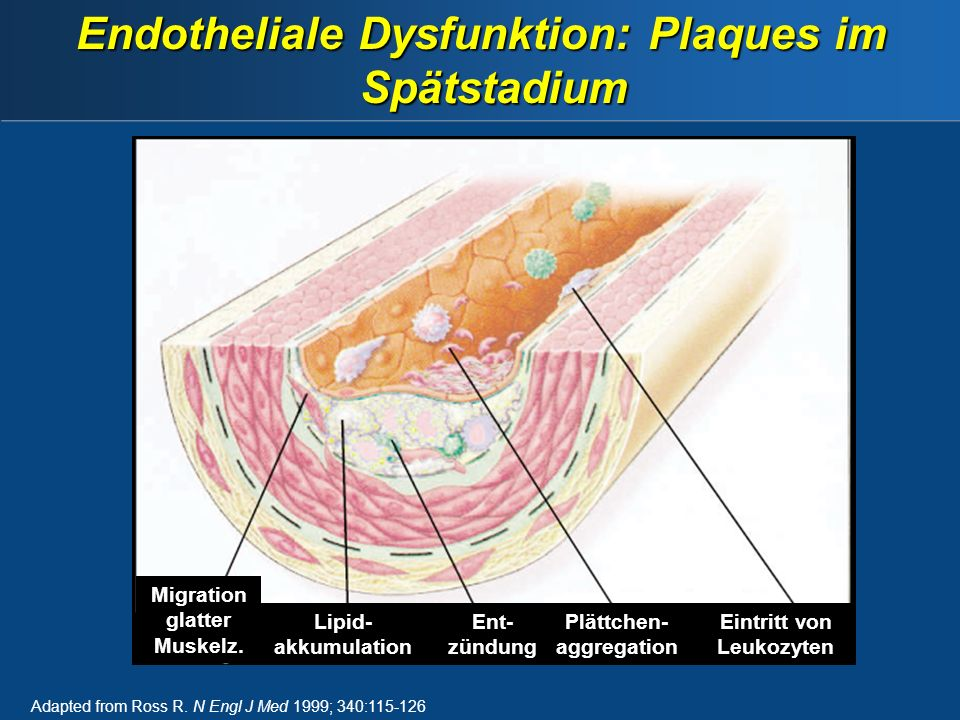 Adapted from Ross R. N Engl J Med 1999; 340:115-126 Endotheliale Dysfunktion: Plaques im Spätstadium Migration glatter Muskelz. Lipid- akkumulation En