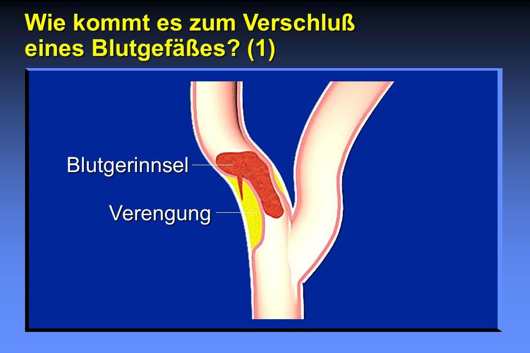 Wie kommt es zum Verschluß eines Blutgefäßes? (1) Blutgerinnsel Verengung