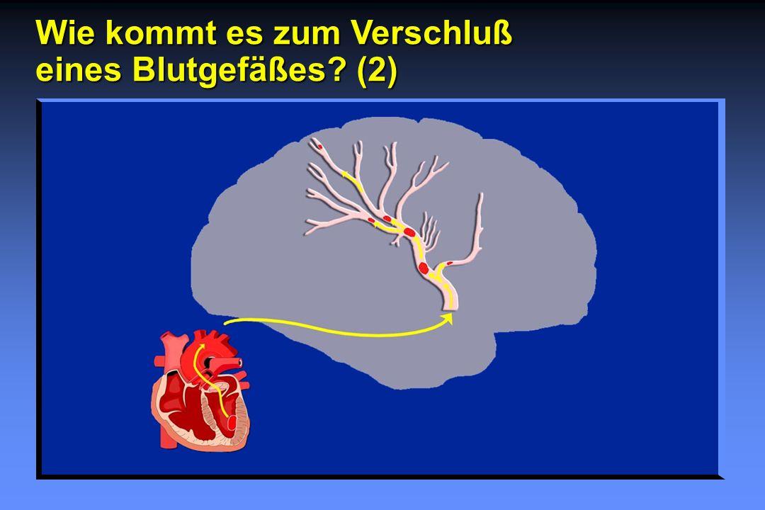 Wie kommt es zum Verschluß eines Blutgefäßes? (2)