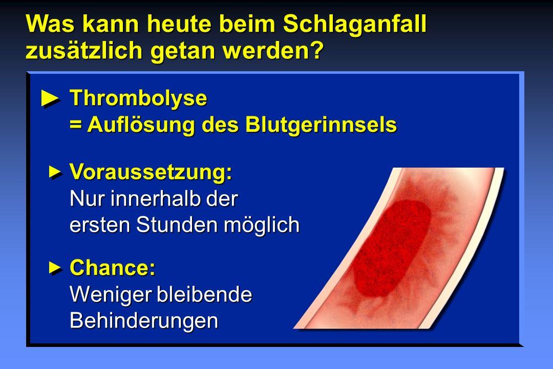 Thrombolyse = Auflösung des Blutgerinnsels Voraussetzung: Nur innerhalb der ersten Stunden möglich Chance: Weniger bleibende Behinderungen Was kann he