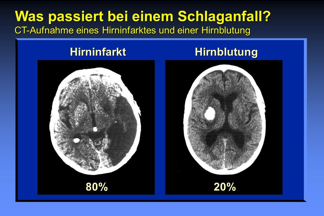 Was passiert bei einem Schlaganfall? CT-Aufnahme eines Hirninfarktes und einer Hirnblutung HirninfarktHirnblutung80%20%
