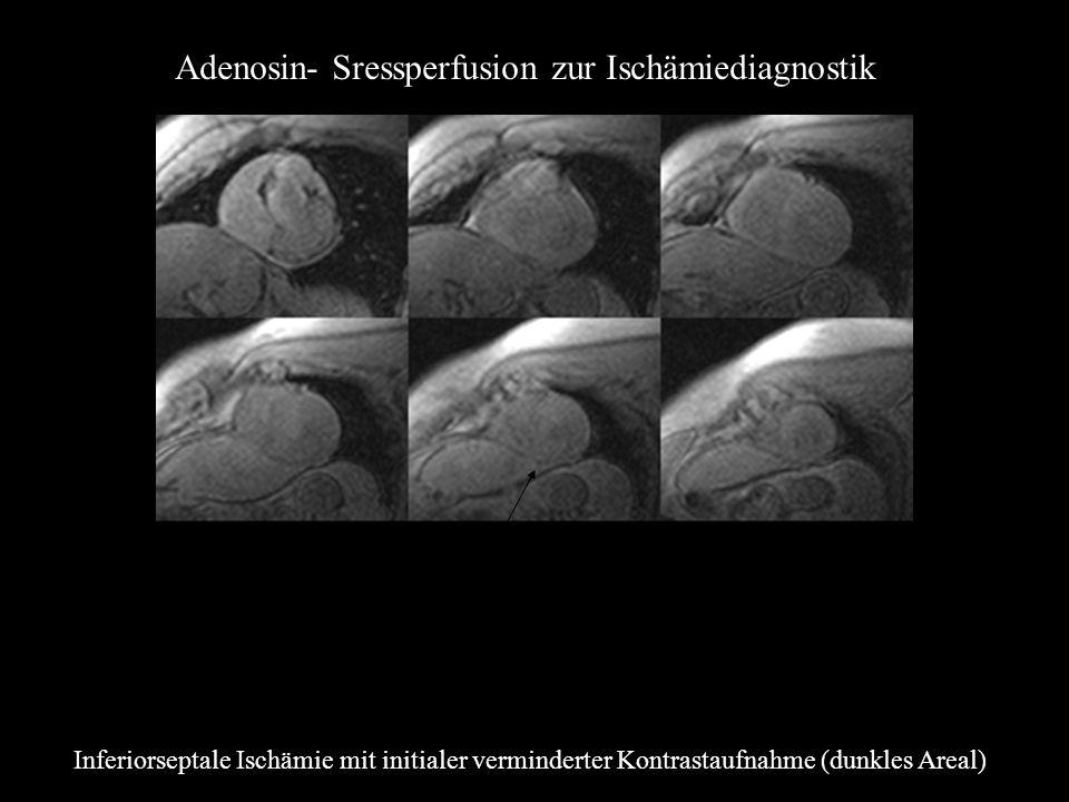 Adenosin- Sressperfusion zur Ischämiediagnostik Inferiorseptale Ischämie mit initialer verminderter Kontrastaufnahme (dunkles Areal)