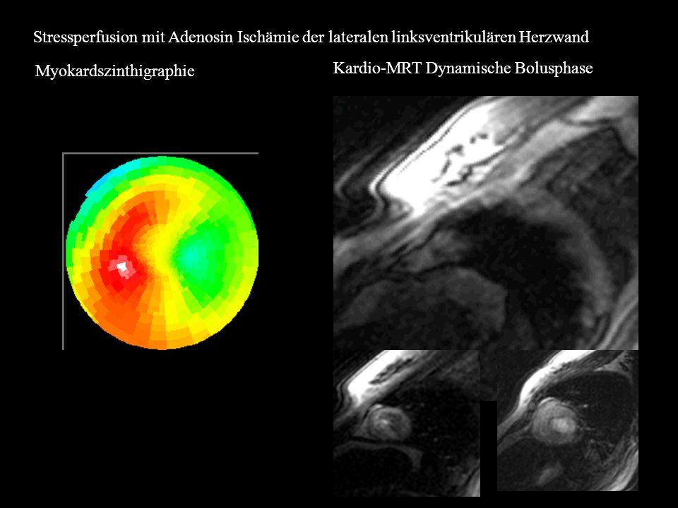 Stressperfusion mit Adenosin Ischämie der lateralen linksventrikulären Herzwand Myokardszinthigraphie Kardio-MRT Dynamische Bolusphase