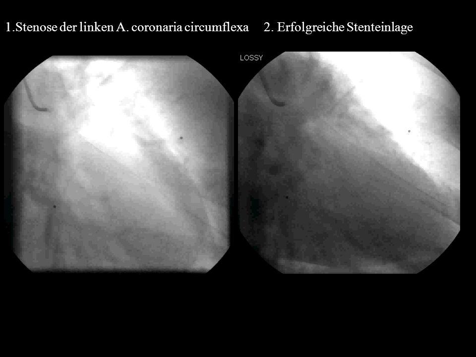 1.Stenose der linken A. coronaria circumflexa 2. Erfolgreiche Stenteinlage S