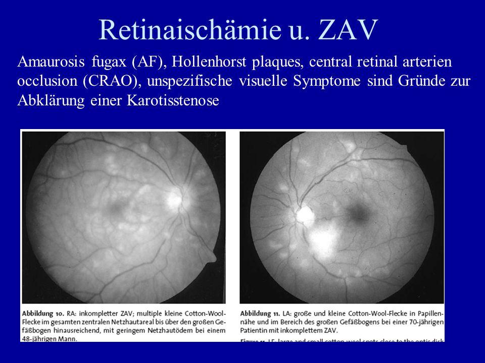 Retinaischämie u. ZAV Amaurosis fugax (AF), Hollenhorst plaques, central retinal arterien occlusion (CRAO), unspezifische visuelle Symptome sind Gründ