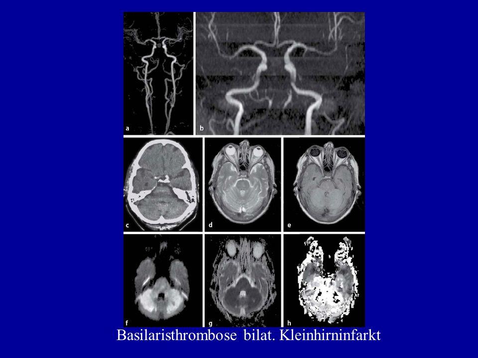 Basilaristhrombose bilat. Kleinhirninfarkt
