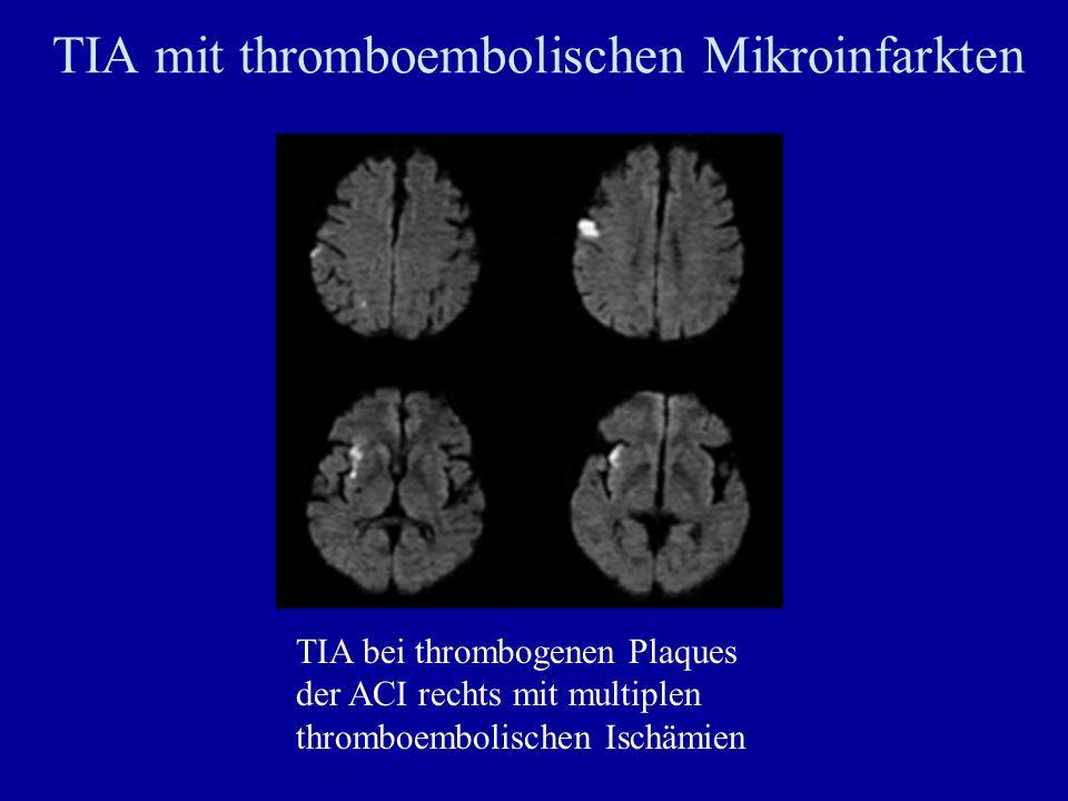 TIA mit thromboembolischen Mikroinfarkten TIA bei thrombogenen Plaques der ACI rechts mit multiplen thromboembolischen Ischämien