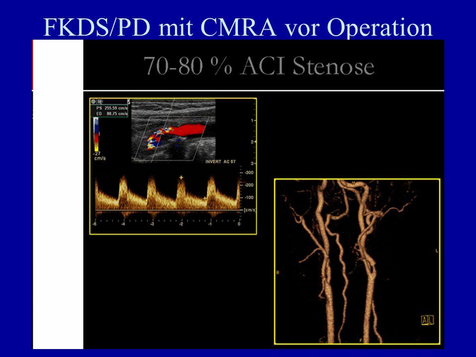 FKDS/PD mit CMRA vor Operation höhergradiger Stenosen