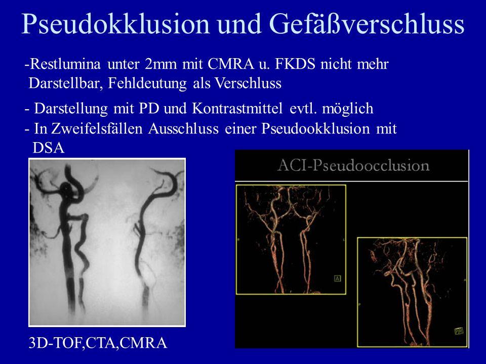 Pseudokklusion und Gefäßverschluss -Restlumina unter 2mm mit CMRA u. FKDS nicht mehr Darstellbar, Fehldeutung als Verschluss - Darstellung mit PD und