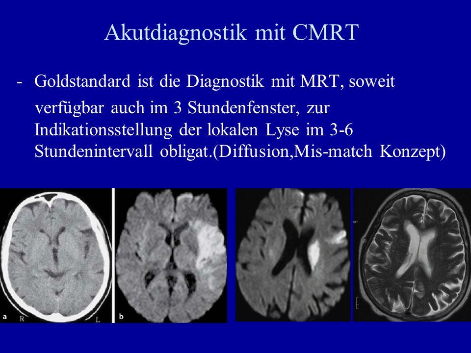 Akutdiagnostik mit CMRT -Goldstandard ist die Diagnostik mit MRT, soweit verfügbar auch im 3 Stundenfenster, zur Indikationsstellung der lokalen Lyse