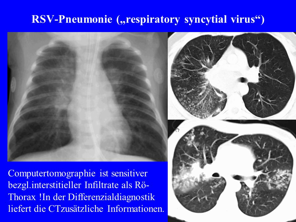 RSV-Pneumonie (respiratory syncytial virus) Computertomographie ist sensitiver bezgl.interstitieller Infiltrate als Rö- Thorax !In der Differenzialdia