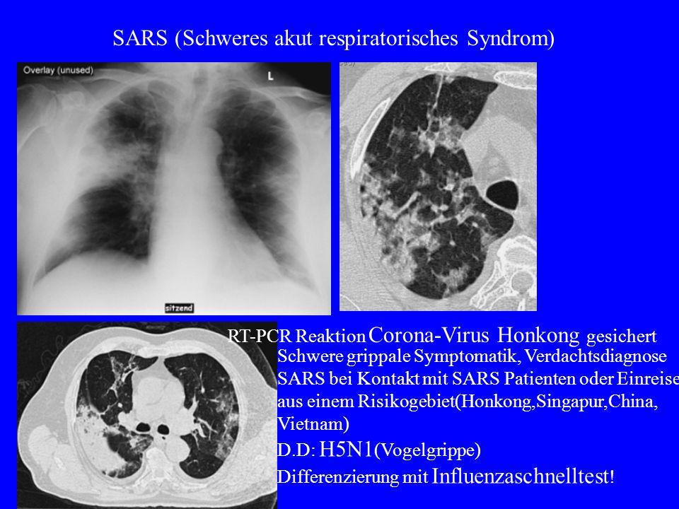 SARS (Schweres akut respiratorisches Syndrom) RT-PCR Reaktion Corona-Virus Honkong gesichert Schwere grippale Symptomatik, Verdachtsdiagnose SARS bei Kontakt mit SARS Patienten oder Einreise aus einem Risikogebiet(Honkong,Singapur,China, Vietnam) D.D: H5N1 (Vogelgrippe) Differenzierung mit Influenzaschnelltest !