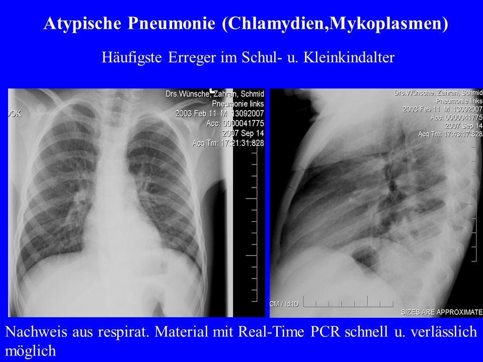 Atypische Pneumonie (Chlamydien,Mykoplasmen) Nachweis aus respirat.