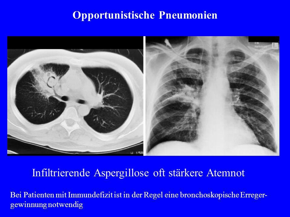 Opportunistische Pneumonien Infiltrierende Aspergillose oft stärkere Atemnot Bei Patienten mit Immundefizit ist in der Regel eine bronchoskopische Erreger- gewinnung notwendig