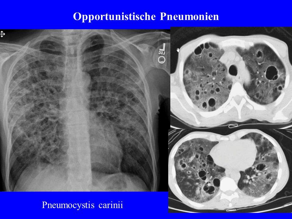 Opportunistische Pneumonien Pneumocystis carinii