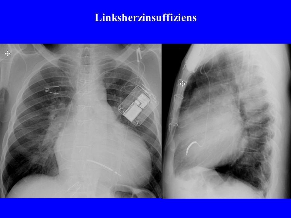 RSV-Pneumonie (respiratory syncytial virus) Computertomographie ist sensitiver bezgl.interstitieller Infiltrate als Rö- Thorax !In der Differenzialdiagnostik liefert die CTzusätzliche Informationen.